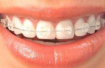 Ceramic braces Newmarket Suffolk Cambridge