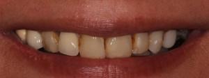 Dental bridges Suffolk Dental Care