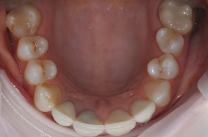 Dental bridges Newmarket Dental Care