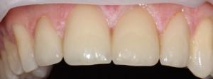 Dental veneers Cambridge Newmarket