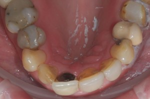 fillings and crowns Newmarket Cambridge before