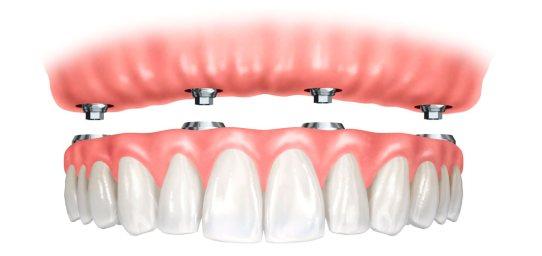 Olive Dental Care, Implant supported dentures