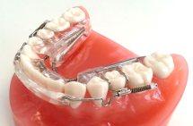 inman aligner dental care Newmarket
