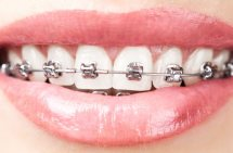 Metal braces Newmarket Suffolk Cambridge