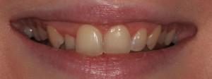 Orthodontics Olive Dental Care Suffolk Newmarket