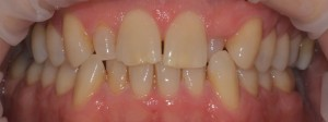 Orthodontics service Olive Dental Care Suffolk Newmarket