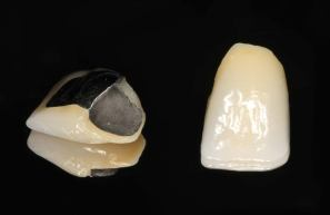 Porcelain bonded to metal crowns