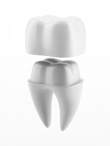 Dental crowns are often referred to as caps