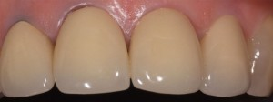 Dental veneers Cambridge Newmarket