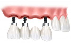 Implant supported bridge