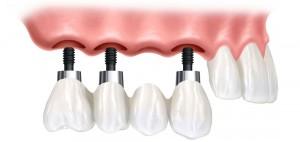 Olive Dental Care, Implant supported bridge