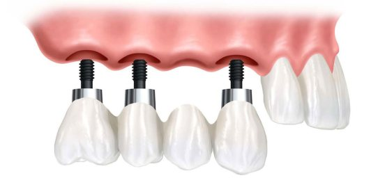 Olive Dental Care, Implant supported bridge