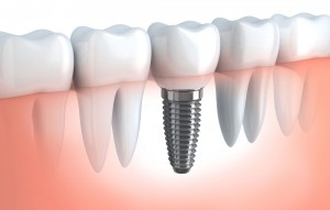 Olive Dental Care, Implant supported crown