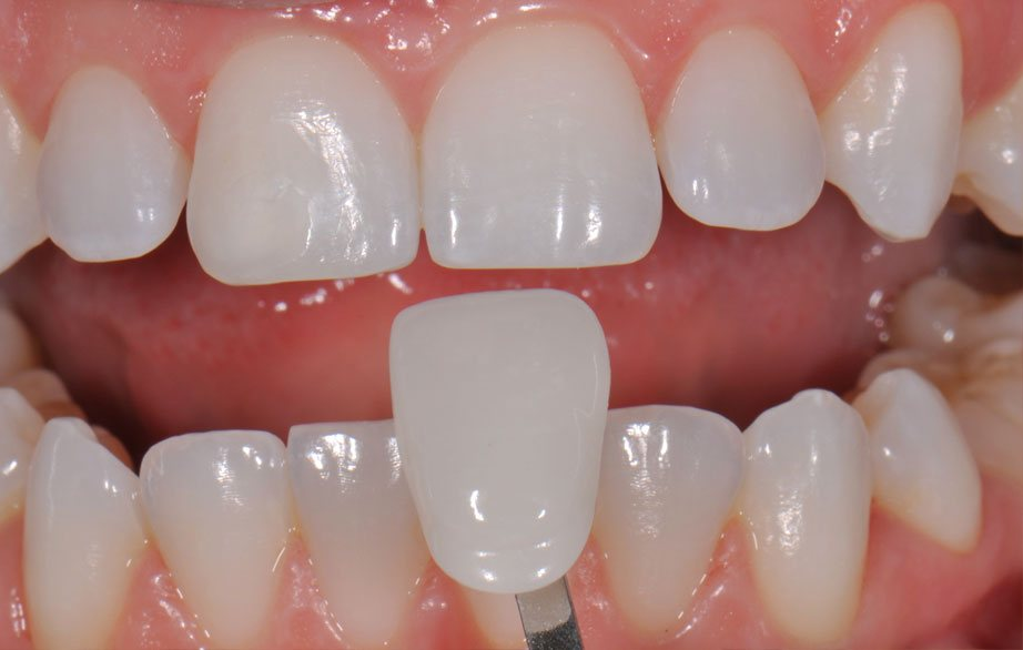 Dental veneers Cambridge